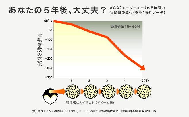 http://www.aga-news.jp/static/images/img_section02_tcm13-6607.jpg